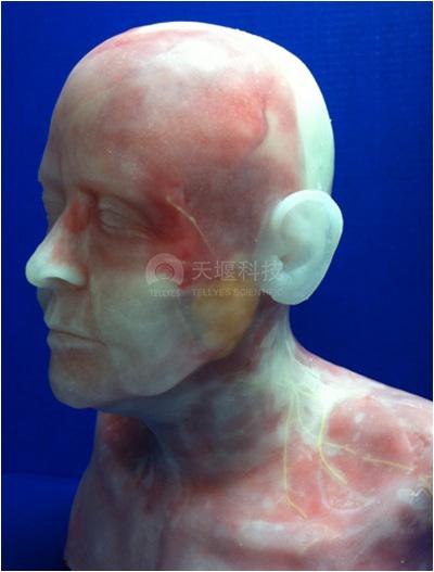 面部填充美容检查训练头部模型
