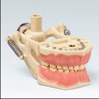 带颌架混合牙列模型
