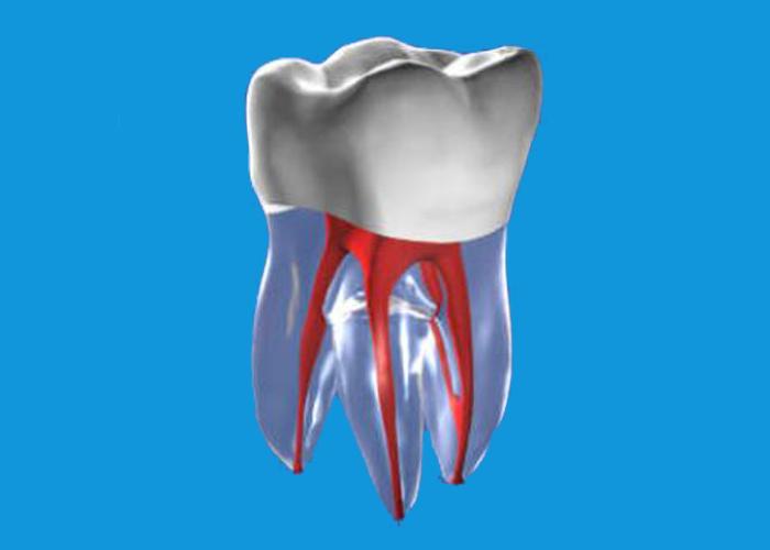 RCT牙齒模子